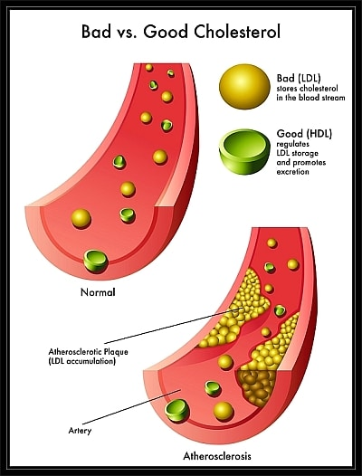 hdl vs ldl What blood tests generally report is hdl-c and ldl-c, that is the amount of  cholesterol in hdl or ldl respectively (again, cholesterol is.