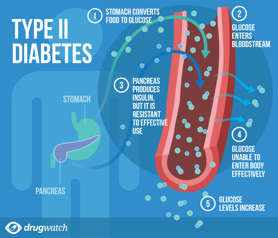 Is Type 2 Diabetes Curable? (8 Things You Should Know ...