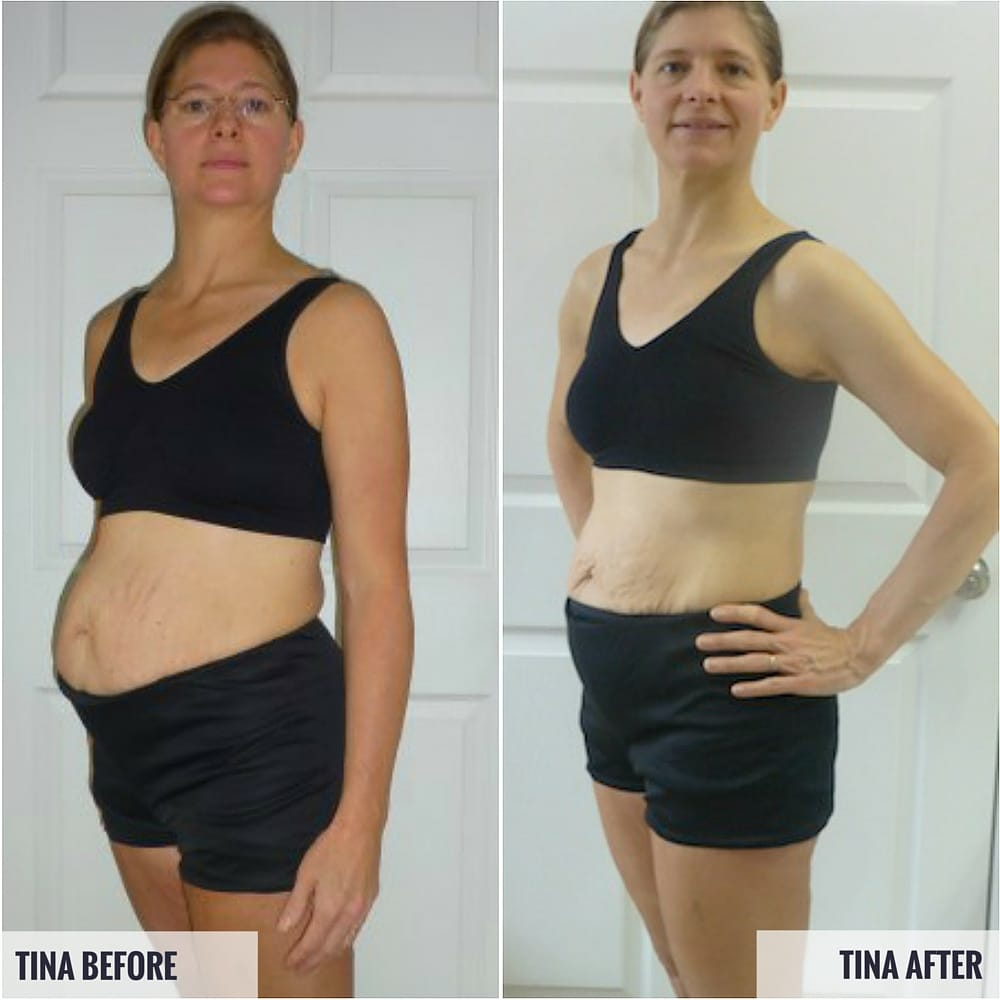 Tina Before and After Photos