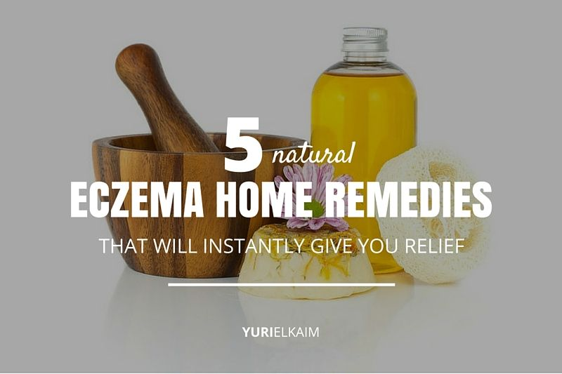 5 Home Remedies for Eczema That Will Relieve Itchiness