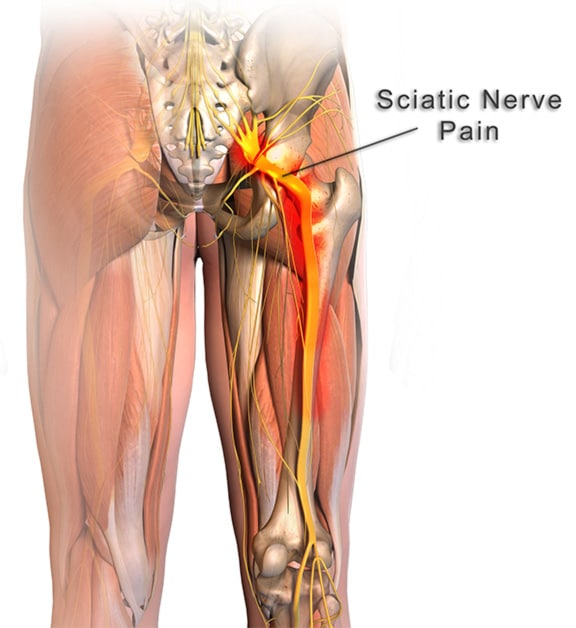 how to relieve sciatic nerve pain (do these 9 odd exercises, Human Body
