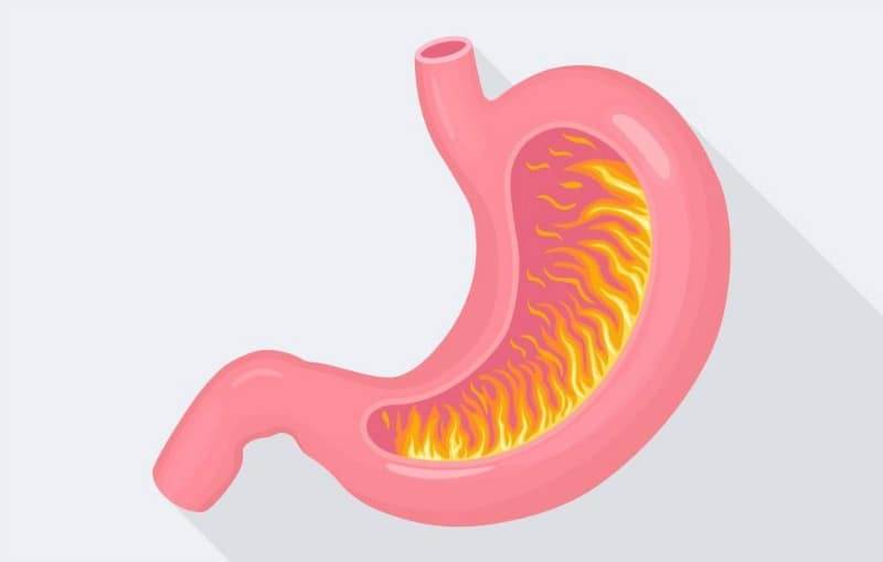 What Is A Natural Way To Get Rid Of Heartburn
