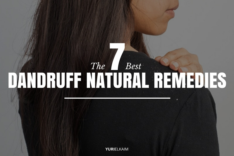 7 Best Natural Remedies for Dandruff and Itchy Scalp | Yuri Elkaim