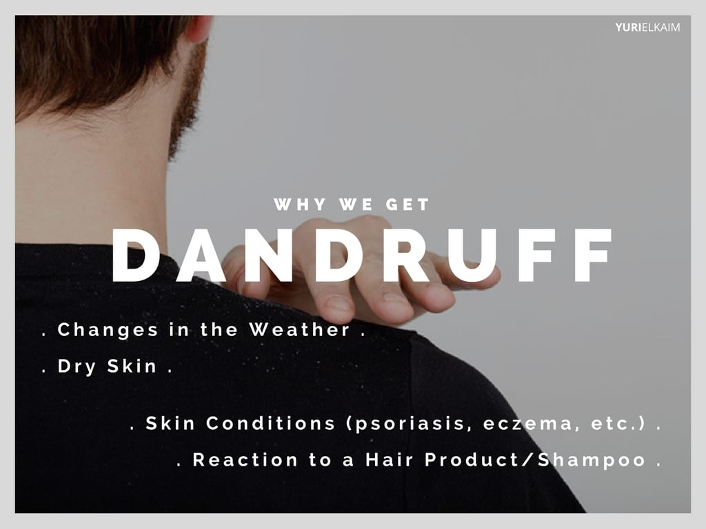 Communication on this topic: 7Natural Ways toGet Rid ofDandruff for Good, 7natural-ways-toget-rid-ofdandruff-for-good/