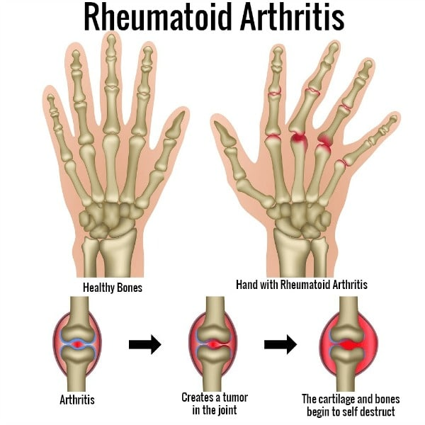 rheumatoid arthritis in the hands